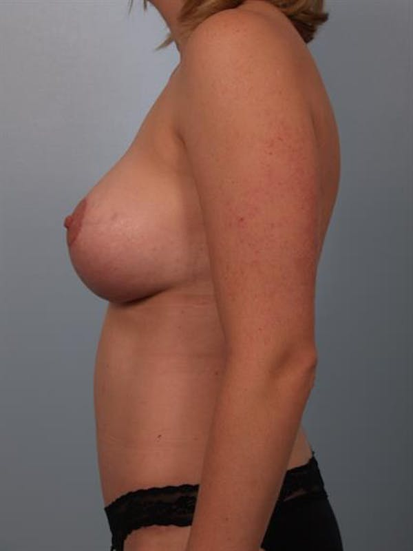 Breast Lift with Implants Gallery - Patient 1612689 - Image 6
