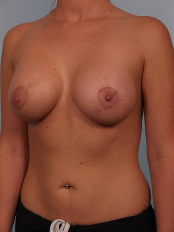 Breast Lift with Implants Gallery - Patient 1612690 - Image 2