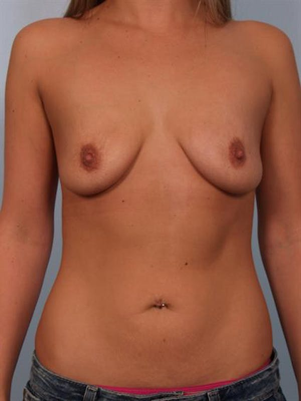Breast Lift with Implants Gallery - Patient 1612690 - Image 3