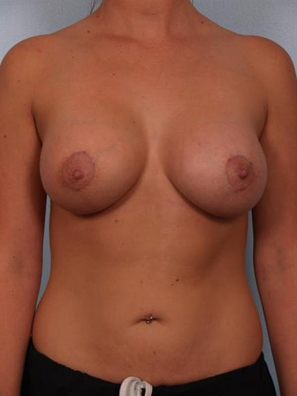 Breast Lift with Implants Gallery - Patient 1612690 - Image 4