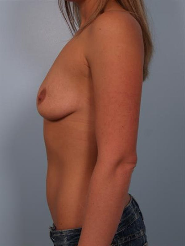 Breast Lift with Implants Gallery - Patient 1612690 - Image 5