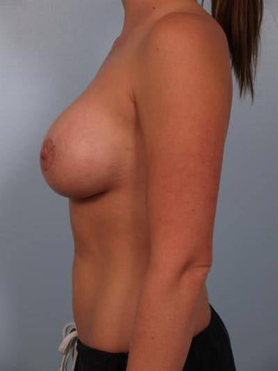 Breast Lift with Implants Gallery - Patient 1612690 - Image 6