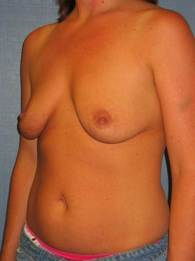 Breast Lift with Implants Gallery - Patient 1612691 - Image 1