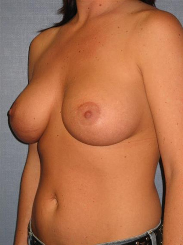 Breast Lift with Implants Gallery - Patient 1612691 - Image 2