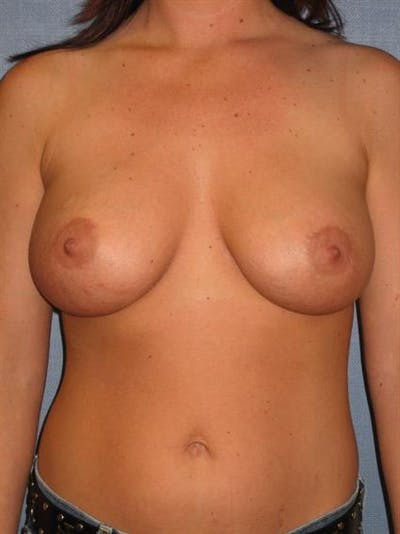Breast Lift with Implants Gallery - Patient 1612691 - Image 4