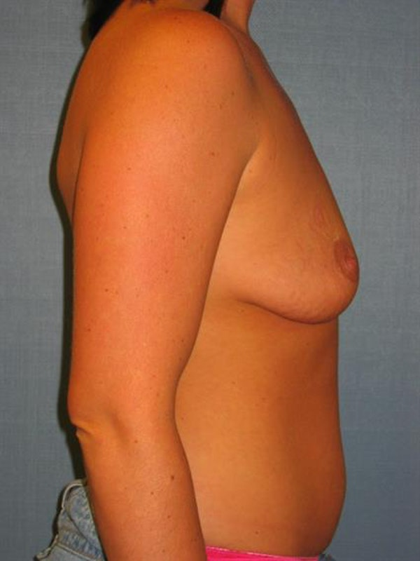 Breast Lift with Implants Gallery - Patient 1612691 - Image 5