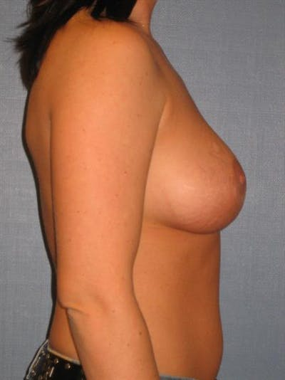Breast Lift with Implants Gallery - Patient 1612691 - Image 6