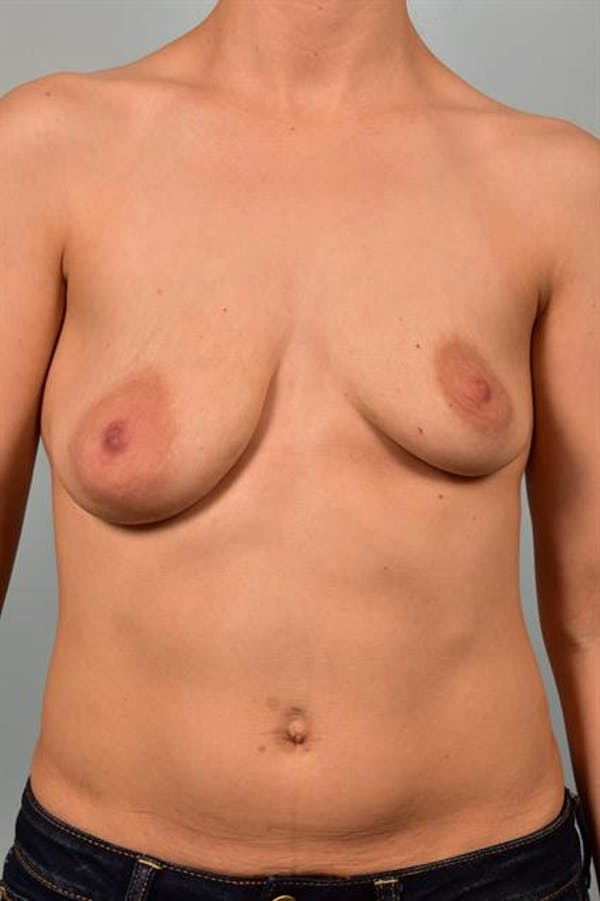 Breast Lift with Implants Gallery - Patient 1612692 - Image 1