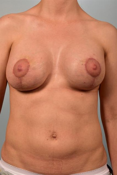 Breast Lift with Implants Gallery - Patient 1612692 - Image 2
