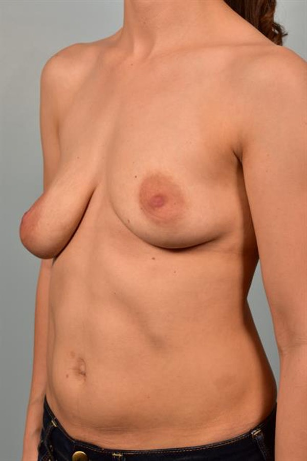 Breast Lift with Implants Gallery - Patient 1612692 - Image 3