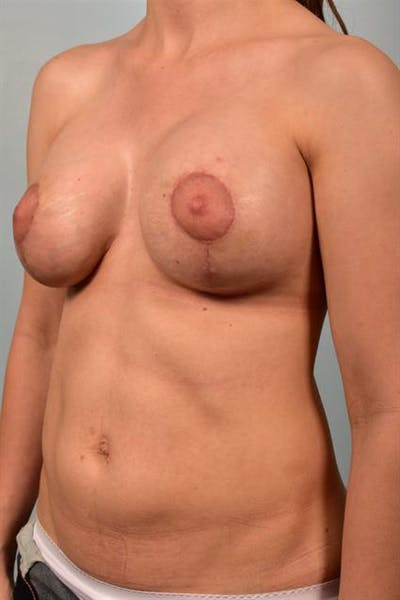 Breast Lift with Implants Gallery - Patient 1612692 - Image 4