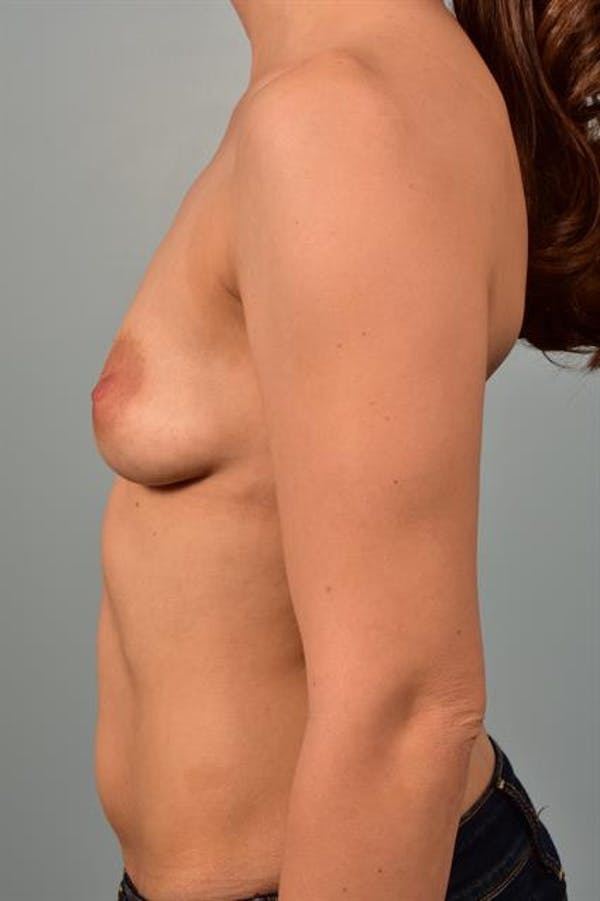 Breast Lift with Implants Gallery - Patient 1612692 - Image 5