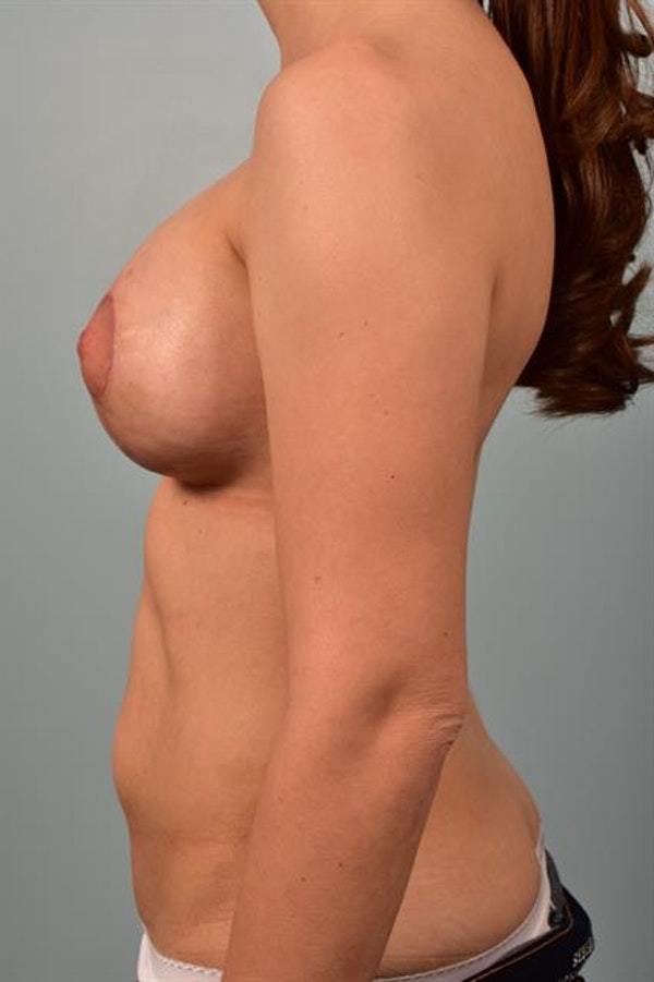 Breast Lift with Implants Gallery - Patient 1612692 - Image 6