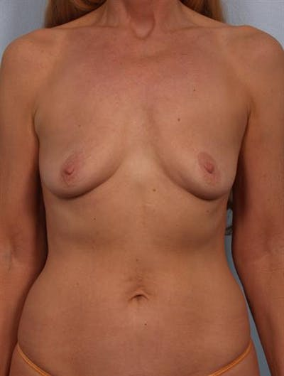 Breast Lift with Implants Gallery - Patient 1612693 - Image 1