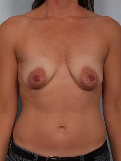 Breast Lift with Implants Gallery - Patient 1612694 - Image 1