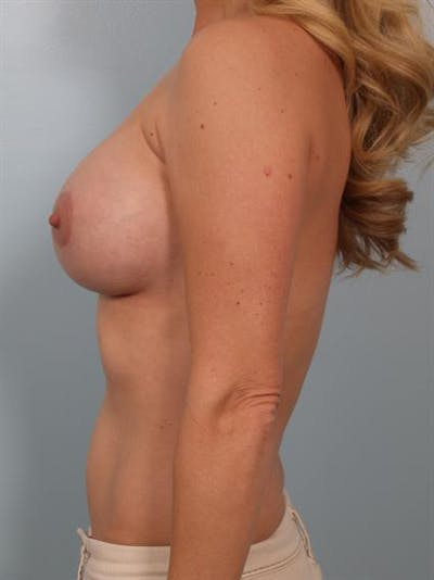 Breast Lift with Implants Gallery - Patient 1612695 - Image 2