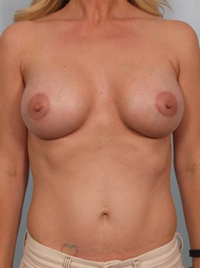 Breast Lift with Implants Gallery - Patient 1612695 - Image 4