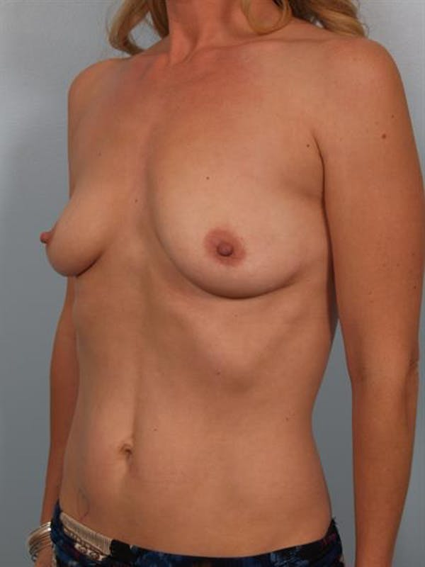 Breast Lift with Implants Gallery - Patient 1612695 - Image 5