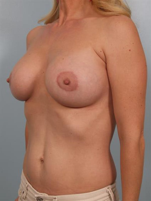 Breast Lift with Implants Gallery - Patient 1612695 - Image 6