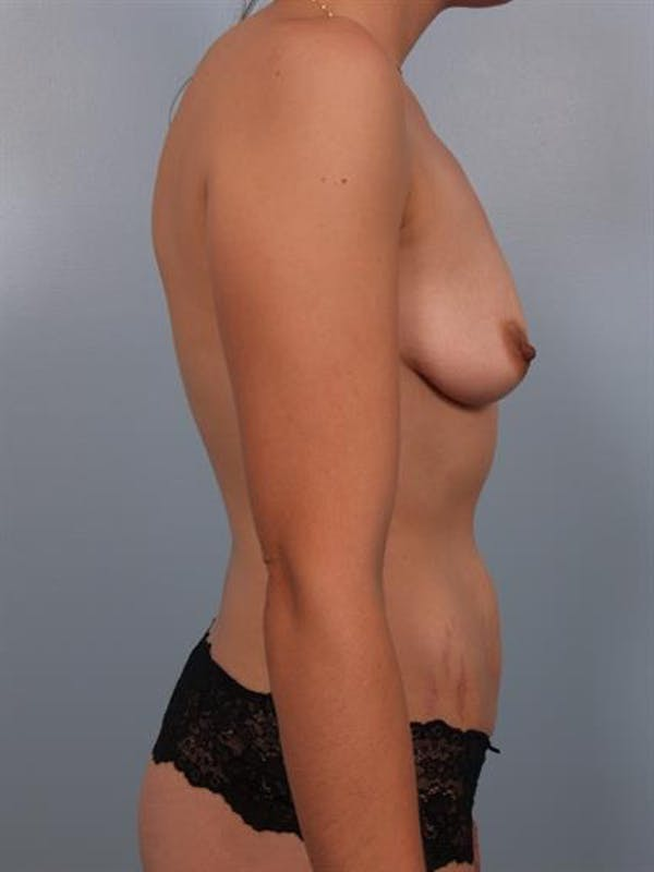 Breast Lift with Implants Gallery - Patient 1612696 - Image 5