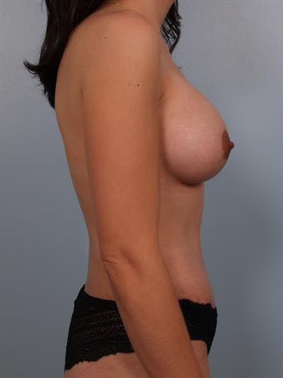 Breast Lift with Implants Gallery - Patient 1612696 - Image 6