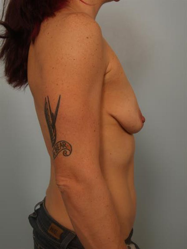 Breast Lift with Implants Gallery - Patient 1612697 - Image 1