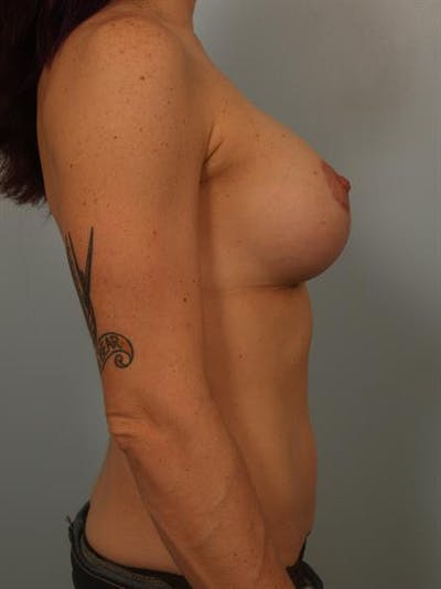 Breast Lift with Implants Gallery - Patient 1612697 - Image 2