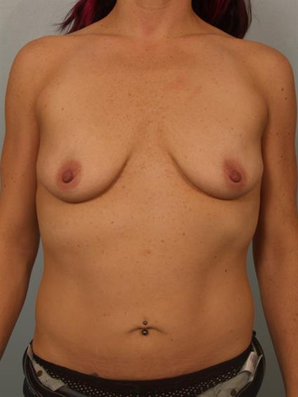 Breast Lift with Implants Gallery - Patient 1612697 - Image 3