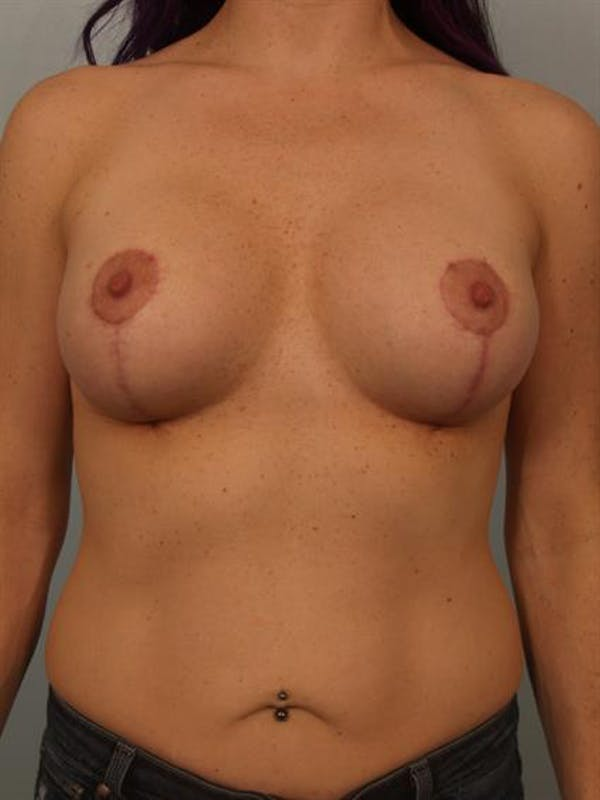 Breast Lift with Implants Gallery - Patient 1612697 - Image 4