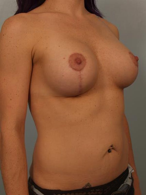 Breast Lift with Implants Gallery - Patient 1612697 - Image 6