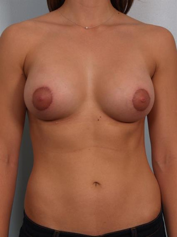 Breast Lift with Implants Gallery - Patient 1612698 - Image 2