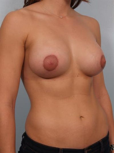 Breast Lift with Implants Gallery - Patient 1612698 - Image 6
