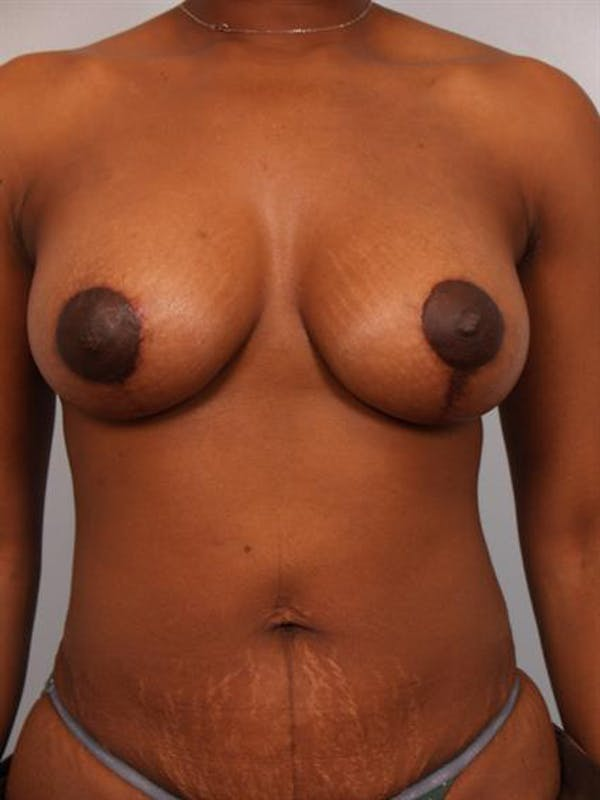 Breast Lift with Implants Gallery - Patient 1612699 - Image 4