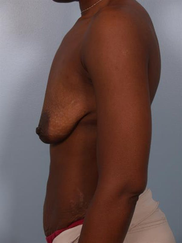 Breast Lift with Implants Gallery - Patient 1612699 - Image 5
