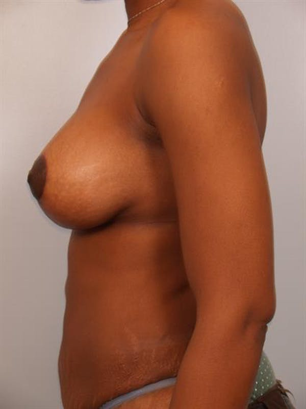 Breast Lift with Implants Gallery - Patient 1612699 - Image 6