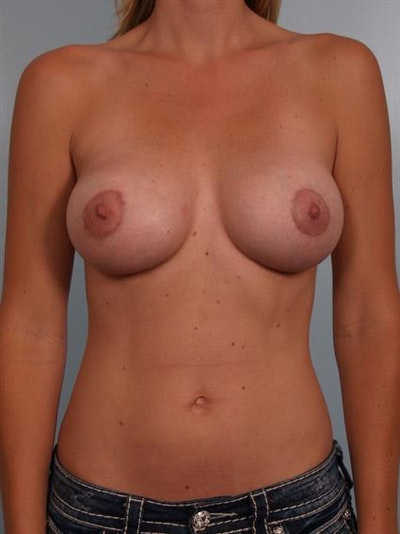 Breast Lift with Implants Gallery - Patient 1612700 - Image 2