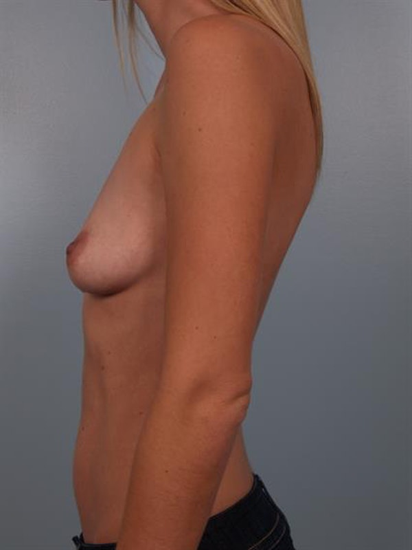 Breast Lift with Implants Gallery - Patient 1612700 - Image 3