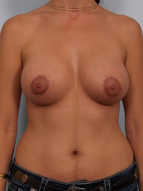 Breast Lift with Implants Gallery - Patient 1612701 - Image 2