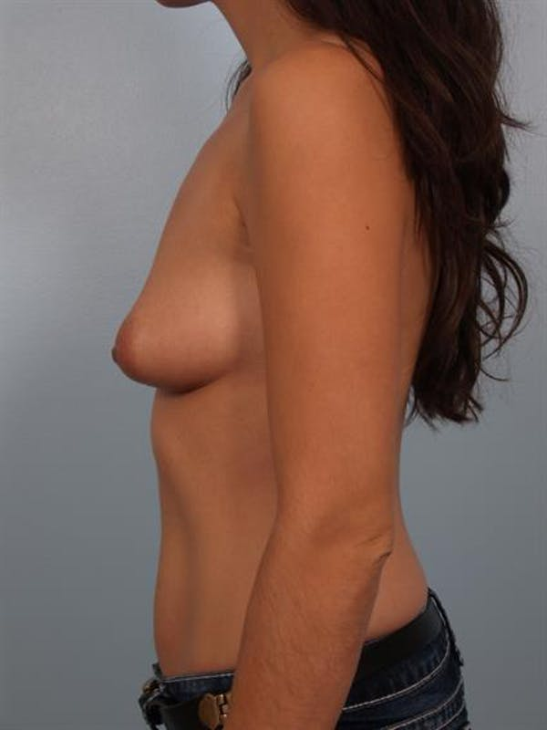 Breast Lift with Implants Gallery - Patient 1612701 - Image 3
