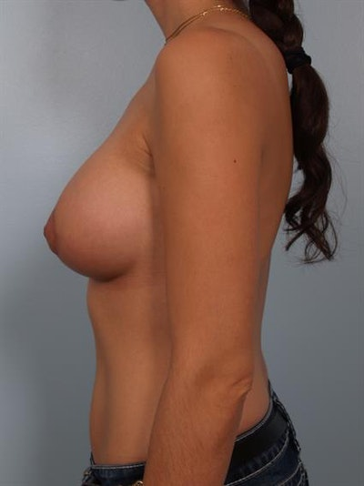 Breast Lift with Implants Gallery - Patient 1612701 - Image 4