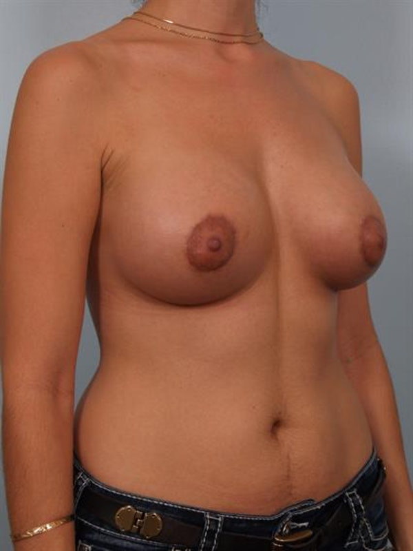Breast Lift with Implants Gallery - Patient 1612701 - Image 6