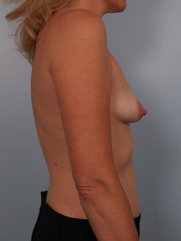 Breast Lift with Implants Gallery - Patient 1612702 - Image 1