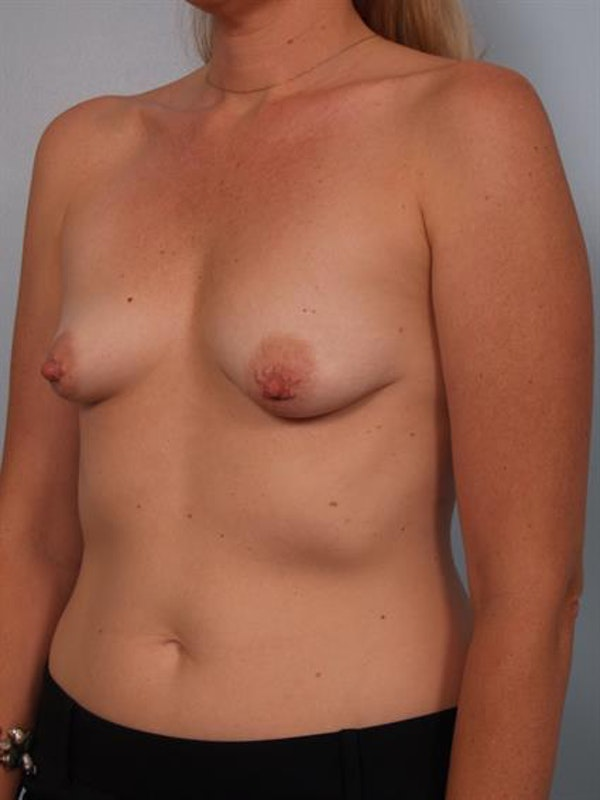 Breast Lift with Implants Gallery - Patient 1612702 - Image 3
