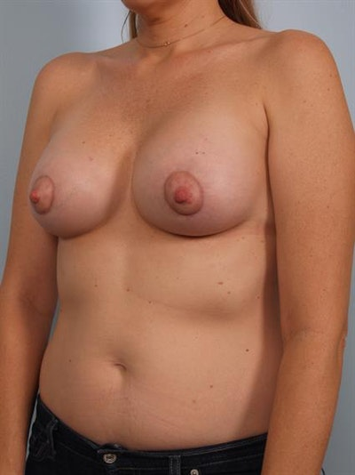 Breast Lift with Implants Gallery - Patient 1612702 - Image 4