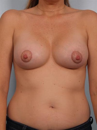Breast Lift with Implants Gallery - Patient 1612702 - Image 6