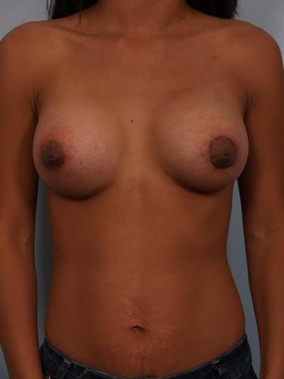 Breast Lift with Implants Gallery - Patient 1612703 - Image 2