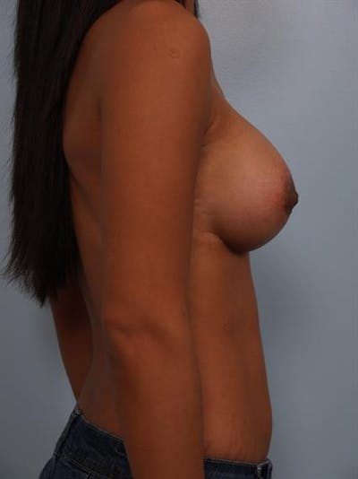 Breast Lift with Implants Gallery - Patient 1612703 - Image 4