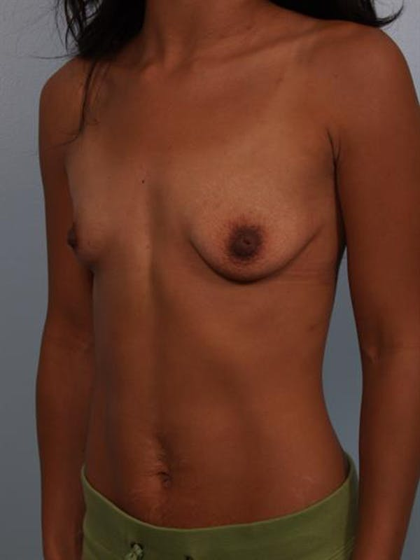 Breast Lift with Implants Gallery - Patient 1612703 - Image 5
