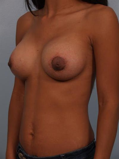 Breast Lift with Implants Gallery - Patient 1612703 - Image 6