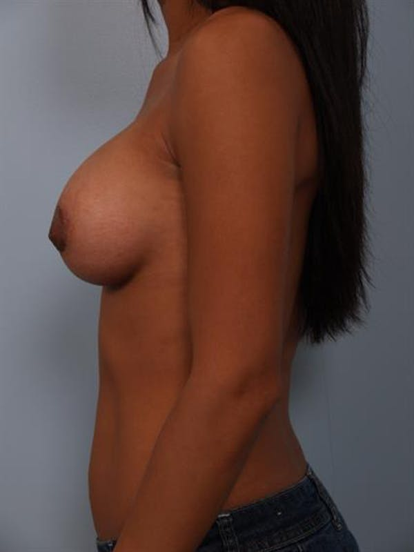 Breast Lift with Implants Gallery - Patient 1612703 - Image 8
